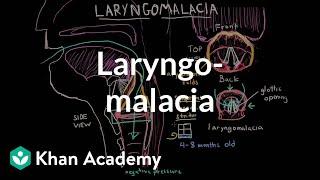 Download Laryngomalacia   Respiratory system diseases   NCLEX-RN   Khan Academy Video