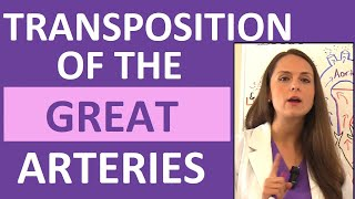 Download Transposition of the Great Arteries (Vessels) | Congenital Heart Defects Nursing NCLEX Pediatrics Video
