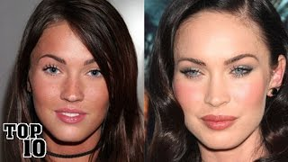 Download Top 10 Celebrities You Didn't Know Had Plastic Surgery Video