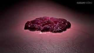 Download Targeting cancer cell metabolism Video