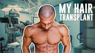 Download My Hair Loss Journey & FUE Transplant In London Video