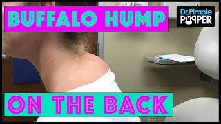 Download Not a TRUE ″Buffalo Hump″ Lipoma with Dr Pimple Popper Video