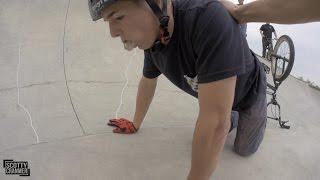 Download MATTY SLAMS HARD AT THE SKATEPARK! Video