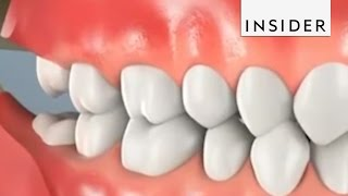 Download Why Do We Remove Wisdom Teeth? Video