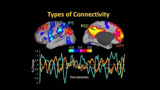 Download UMass Amherst CONN Workshop, Part 1: Functional Connectivity Video