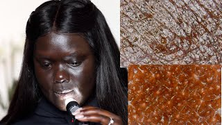 Download Looking at Dark Skin Under a Microscope || Nyma Tang Video