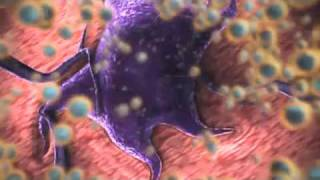Download nanomedicine: nanotechnology for cancer treatment Video