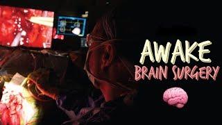 Download Awake surgery - Brain tumour Video