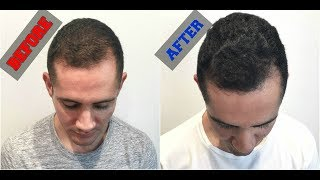 Download Grow Back Your Hair with Platelet Rich Plasma (PRP Treatment) Video