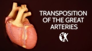 Download Transposition of the Great Arteries Video