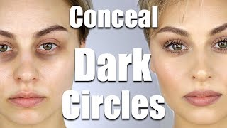 Download How To Conceal Dark Circles Under Eyes | Alexandra Anele Video