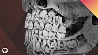 Download Where Do Teeth Come From? Video