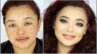 Download Makeup transformation for Hyper-Pigmentation / Acne Spots / Melasma Video