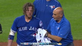 Download TOR@KC: Donaldson gets hit on his face, stays in game Video