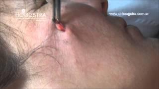 Download Extracción de Quiste Sebáceo con Láser Lotus II (14080) Video