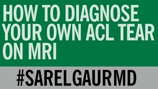 Download How To Diagnose Your Own ACL Tear on MRI Video