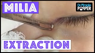 Download Milium Extraction from a Very Delicate Inner Eye Area Video