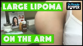 Download ATTENTION: THIS IS NOT A DELTOID MUSCLE with Dr Pimple Popper Video