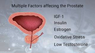 Download Keto Diet Prostate Cancer treatment | Russ Scala Video