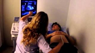 Download Primera Ecografia obstétrica de Mariela - 10 semanas y 6 días de gestación Video