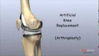 Download Artificial Knee Replacement Video