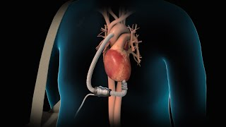 Download Left Ventricular Assist Device | LVAD | Nucleus Health Video