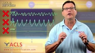 Download ACLS Adult Cardiac Arrest Algorithm - PEA/Asystole Video