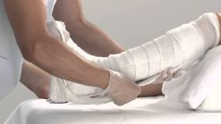 Download Plaster of Paris Lower Leg Splint Application Video