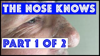 Download The Nose Knows: Part I ″Mr. Wilson's″ Blackhead Extractions Video