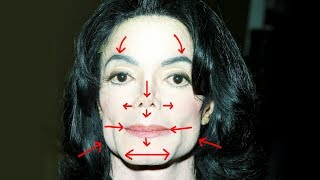Download Removing MICHAEL JACKSON'S Plastic Surgery Video