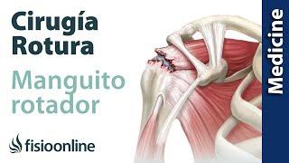 Download Lesión del manguito rotador - Qué es, diagnóstico y tratamiento indicado en fisioterapia y cirugía Video