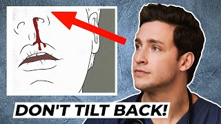 Download Doctor's Trick to Stop A Bloody Nose | Responding To Comments Video