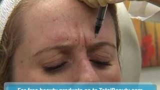 Download Watch a Botox Injection in the Skin Video
