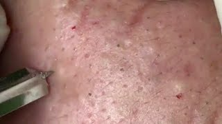 Download Cystic Acne, Blackheads And Pimples Extraction On Face Acne Treatment 18001! Video