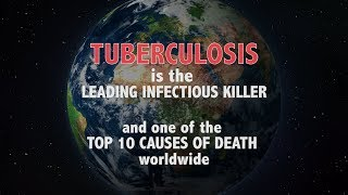 Download WHO: Tuberculosis is the leading infectious killer - Ministers declare commitment to end TB Video