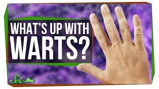 Download What's the Deal with Warts? Video