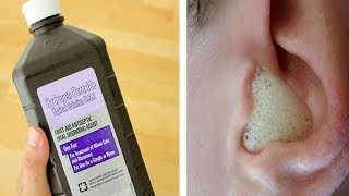 Download 20 Surprising Uses Of Hydrogen Perdoxide Video