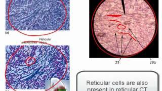 Download Connective Tissue Part 1 Video