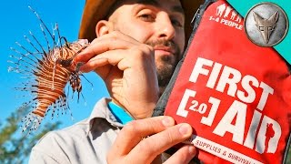 Download How to Cure a Lionfish Sting! Video