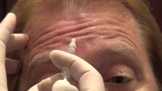 Download Botox Training - Forehead Injections - Empire Medical Training Video