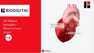 Download 3D Medical Animation - What is a Heart Attack? Video