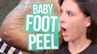 Download INSANE Baby Foot Peel (Beauty Break) Video