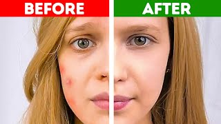 Download 37 EPIC HACKS TO SOLVE GIRLS PROBLEMS Video