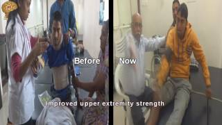 Download Treatment for Spinal Cord Injury C6 | Quick look | No. 1834 Video