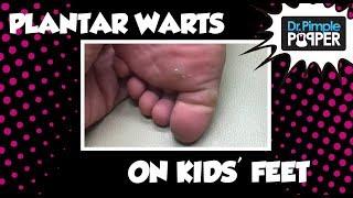 Download Plantar Warts on my kids' feet Video