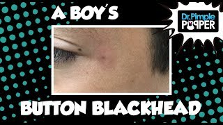 Download A Boy's Button Blackhead Video