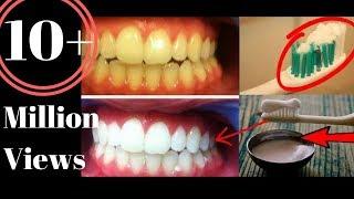 Download सिर्फ 2 मिनट में पीले गंदे दाँतों को मोती जैसा चमका देगा ये ज़बरदस्त घरेलु नुस्खा/ TEETH whitening Video