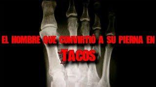 Download El tipo que convirtió su pierna en tacos (real) Video