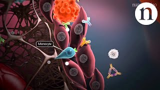 Download Immunology of the rheumatoid joint Video