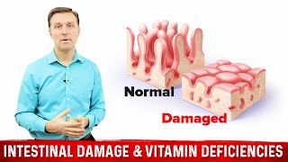 Download Intestinal Damage & Vitamin Deficiencies Video
